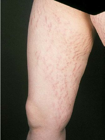 108 best images about steroid cream addiction topical for Tattoos and eczema