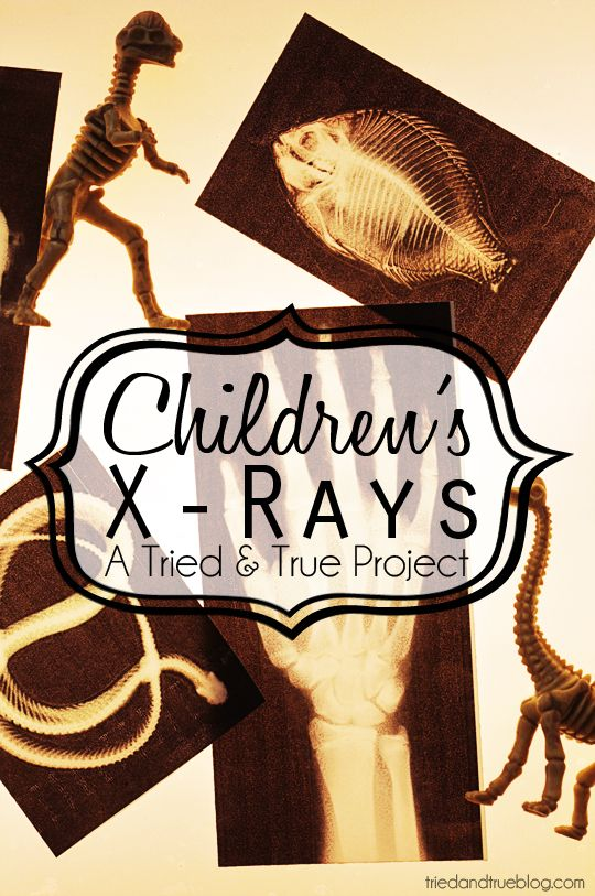 Children's Play X-Rays