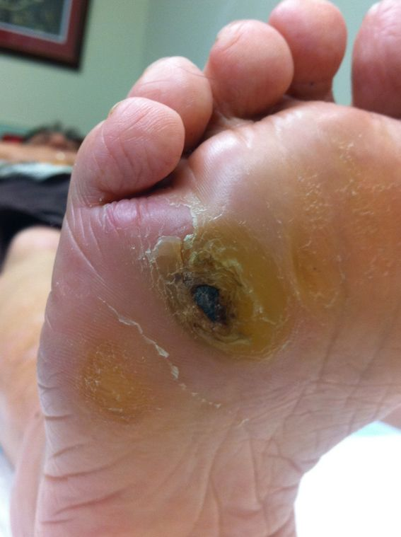 Best Natural Cures For Peripheral Neuropathy