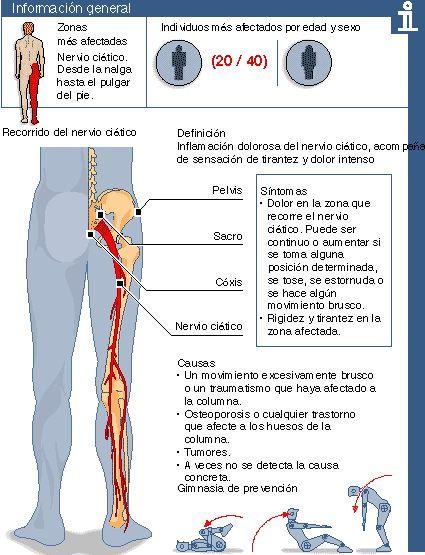 ¿Qué es la ciática?  La ciática es la inflamación del nervio ciático, el más largo del organismo, que es el encargado de controlar el funcionamiento de las piernas y los pies. Cuando el nervio ciático se comprime y después se inflama a causa de una contractura, una hernia discal o un brusco movimiento de rotación, el dolor es intenso llegando a ser incapacitante durante unos días.