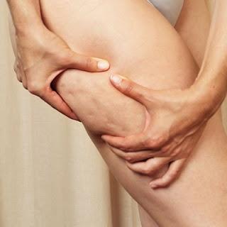 Cosmetologia natural: Celulitis