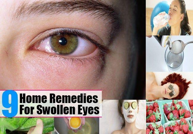 Remedies For Swollen Eyes Howtogetridofeyestye How To Get Rid