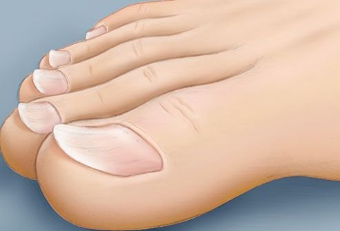 illustration of spoon shaped toenails--Sometimes an injury to the nail or frequent exposure to petroleum-based solvents can create a concave, spoon-like shape. However, iron deficiency also can cause this unusual shape.