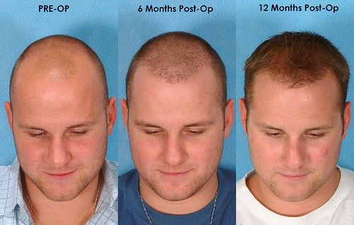 kopaszodás, kopaszság, hajbeültetés, hajtranszplantáció, hajátültetés, hajbeültetés előtte utána, hajbeültetés műtét