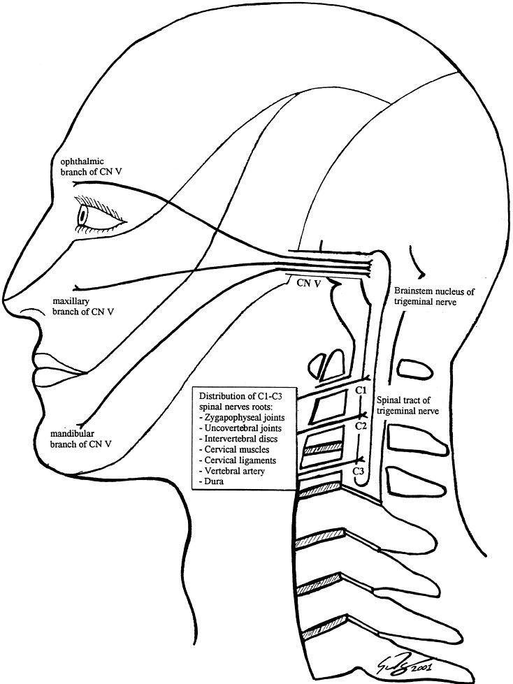 Image Result For Migraine Brain