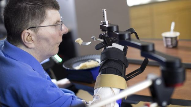 Paralysed man feeds himself with help of implants.  The 53 year-old man who had been paralysed below the shoulders for eight years was the case study