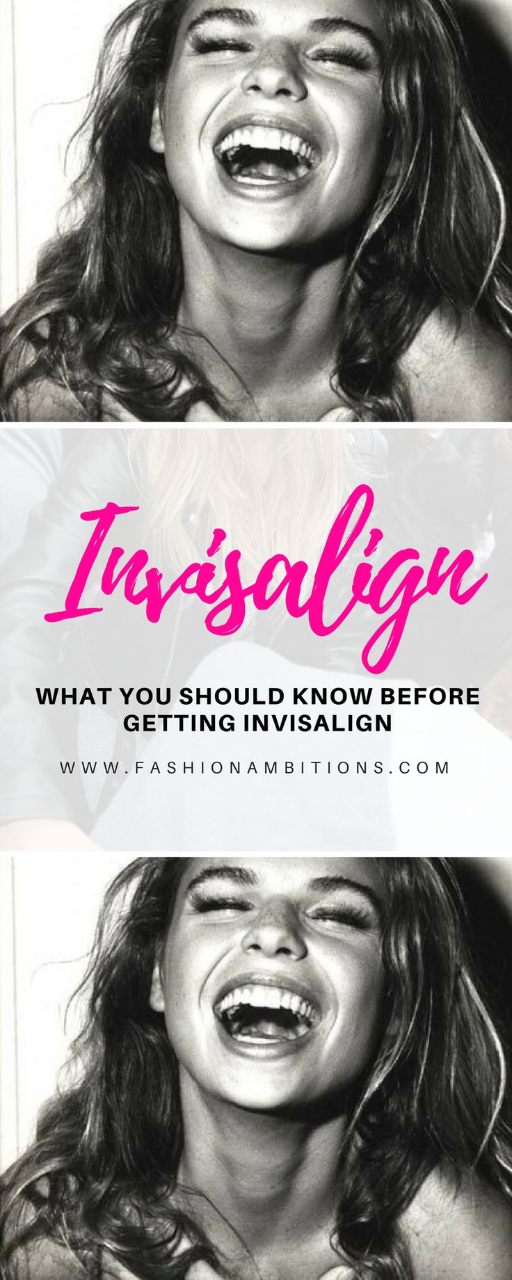 What You Should Know Before Getting Invisalign