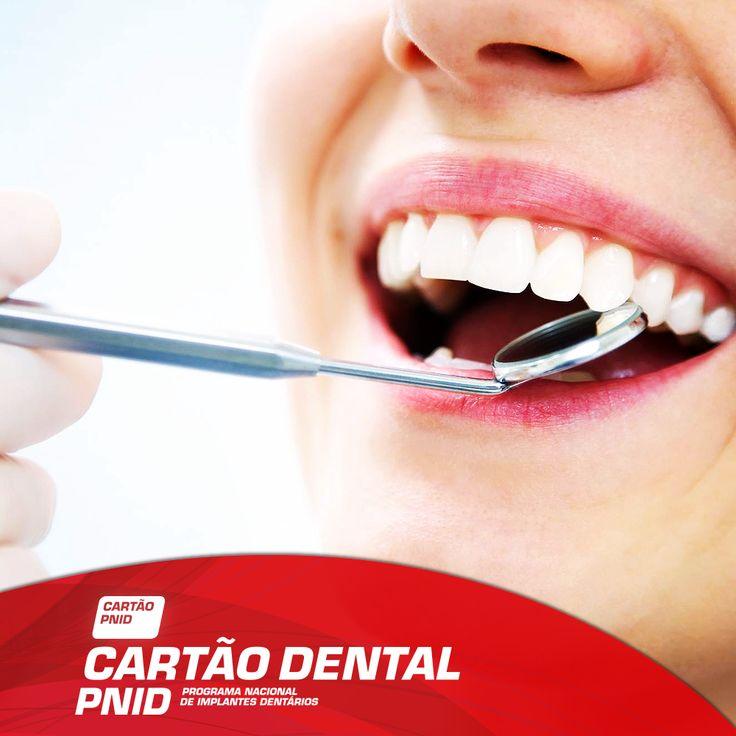 Procura uma solução para completar o seu Sorriso? Este procedimento usual consiste na colocação do implante alguns meses depois da perda ou extração do dente. As mais-valias? Uma melhor estética, fonética e mastigação.  -------------------- Adira JÁ ao seu Cartão: > http://www.pnid.pt/cartaodentalpnid/#saber-mais