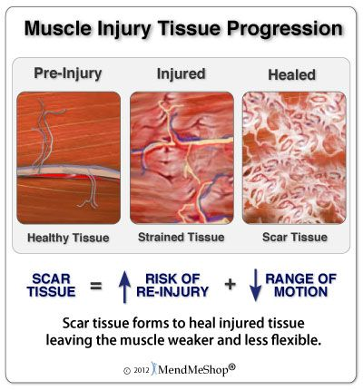 Treating injured infraspinatus muscle. While the attached is an 'appliance' sales site it does provide good exercise & treatment informatoin as well.
