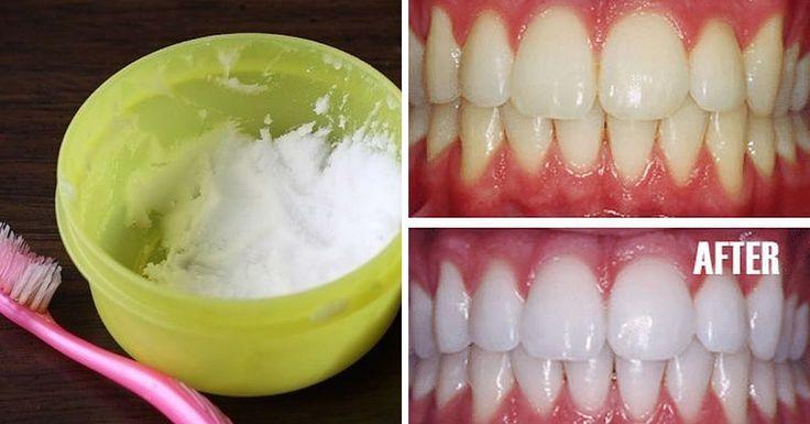 Lo sbiancamento dei denti, utilizzando prodotti chimici, oltre ad essere un male per i tuoi denti, è anche molto costoso. Ecco un modo semplice, naturale ed economico!