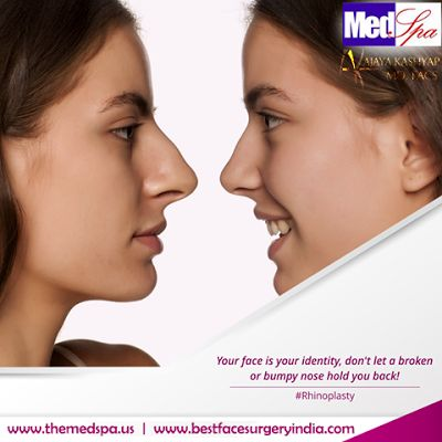 Wish you could do something to your nose to make your face look better? Have you considered Rhinoplasty surgery? It can definitely enhance facial harmony.  #rhinoplasty #rhinoplastysurgery #rhinoplastyDelhi #rhinoplastyIndia #Rhinoplastysurgeon #nose #nosejob #nosereshaping #nosesurgery #facialplasticsurgeon #cosmeticsurgeon #drajayakashyap #BestFaceSurgeryIndia