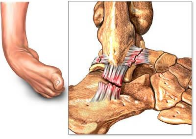 Ligaments Of The Foot | Illustration of ankle ligament sprain with common torn ligaments