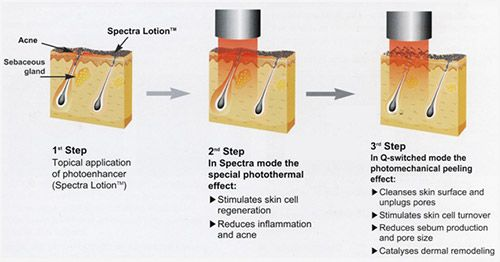 Spectra Laser system is an effective non-ablative skin rejuvenation treatment. Its procedure which is known as thermal rejuvenation is done with two steps. Doctor advises thermal rejuvenation process to treat enlarged pores, acne scars, fine wrinkle reduction and melasma. For more information on spectra laser system visit http://www.gynaemd.com.sg/aesthetics_spectra_laser.html