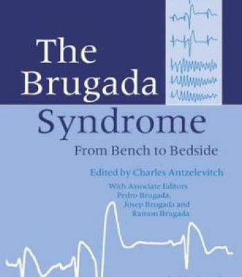 The Brugada Syndrome: From Bench To Bedside PDF