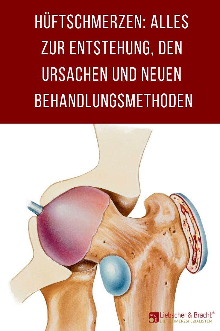 Hüftschmerzen Liebscher & Bracht | Die Schmerzspezialisten