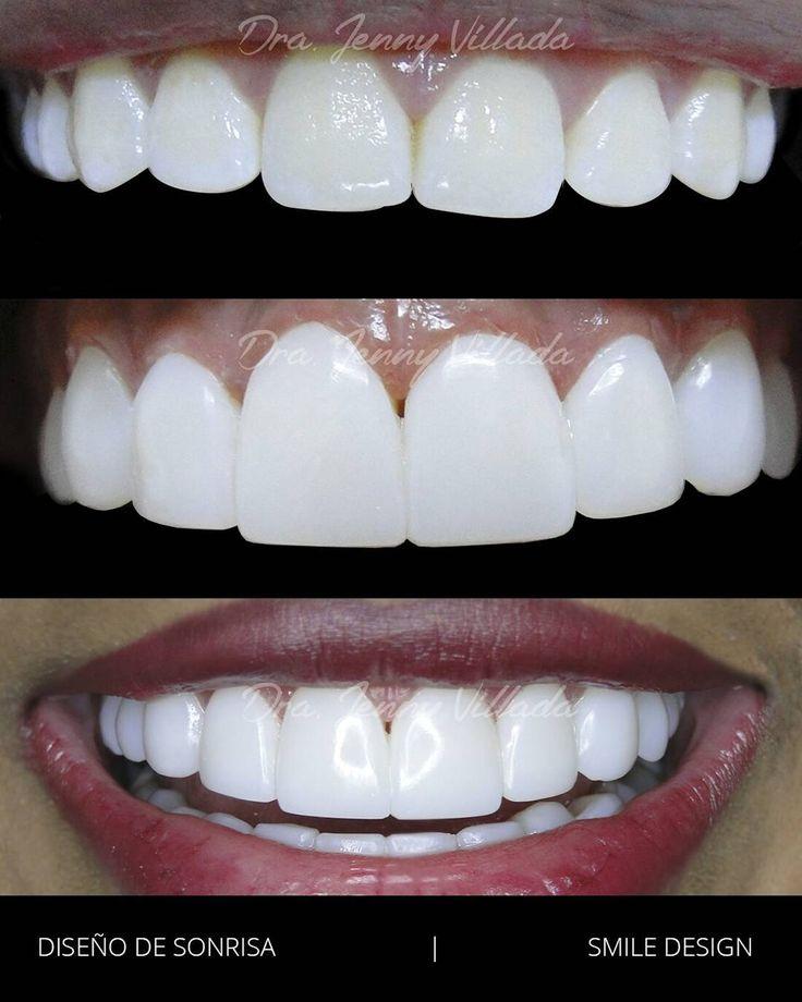 perfect smile veneers отзывы стоматологов