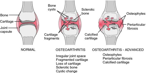 Osteoarthritis | definition of osteoarthritis by Medical dictionary