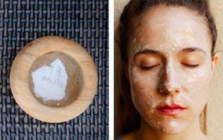 11 masques à préparer vous-même contre l'acné et les imperfections - Astuces de grand mère