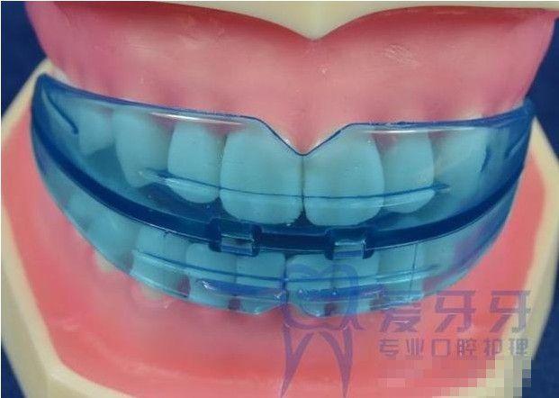 2013 Braces orthodontic braces correction buck teeth retainer  keep you beautiful high quality