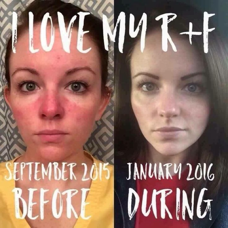 """Devis Burnam found relief from her Rosacea using Rodan + Fields' SOOTHE regimen. Here's what she had to say:  """"The left is me in September 2015, battling Rosacea for the millionth time in the past 7 1/2 years (mine only started after I was pregnant with my son, Aidan). I had tried every product under the sun, and then some. I had been to the dermatologist and been prescribed medication (soap included, LOL), tried over-the-counter meds, even natural remedies. You name it"""