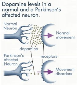 Dopamine in a normal neuron vs a Parkinson's affected neuron