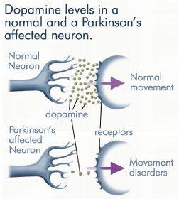 Early Symptoms of Parkinson's Disease | Natural Holistic Health Blog