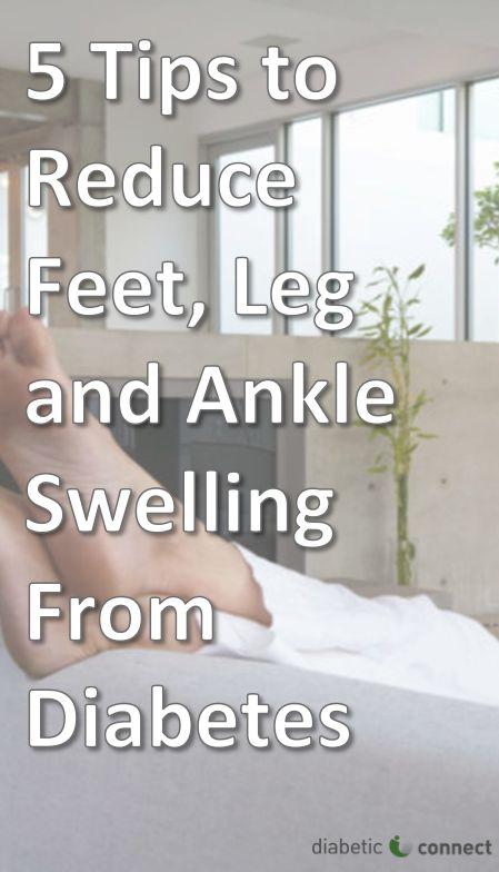 Swollen ankles and feet can be painful, and are common for those with diabetes. Standing or walking for long periods of time can cause an abnormal fluid buildup in the ankles, feet and legs — especially among older adults. Here are some tips that may help.