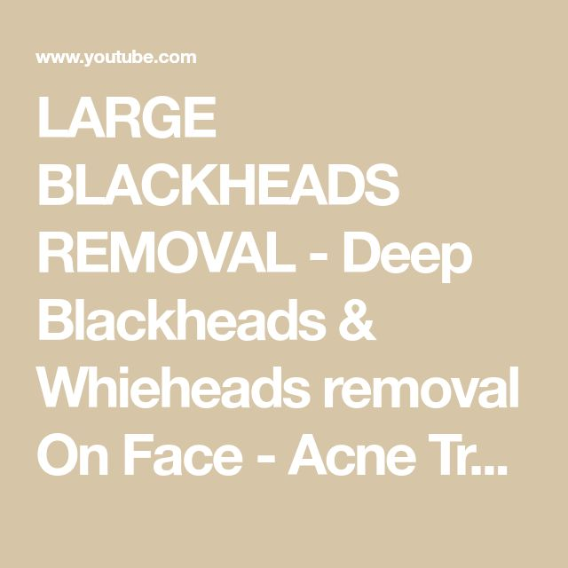 LARGE BLACKHEADS REMOVAL – Deep Blackheads & Whieh…