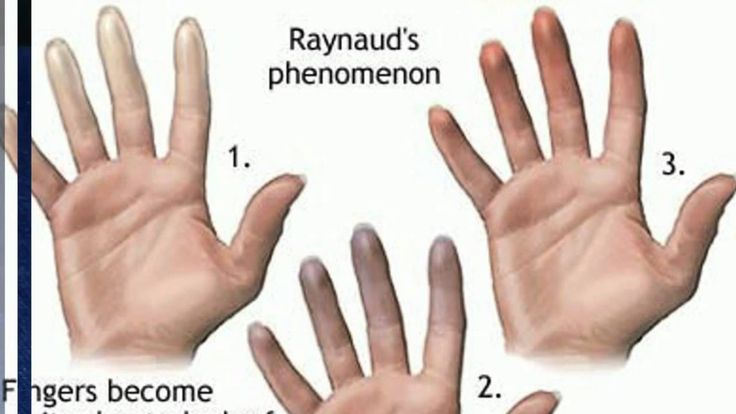 Raynaud's Disease: Symptoms, Causes And Treatments | Faculty of ...