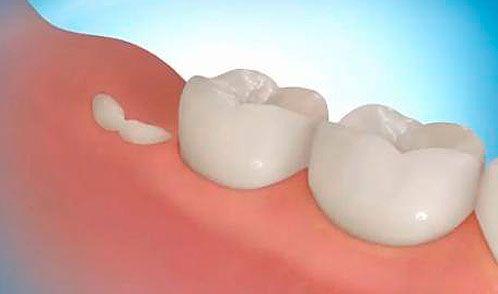 Вскоре мы сможем выращивать себе новые зубы