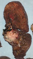 A squamous-cell carcinoma (the whitish tumor) near the bronchi in a lung specimen