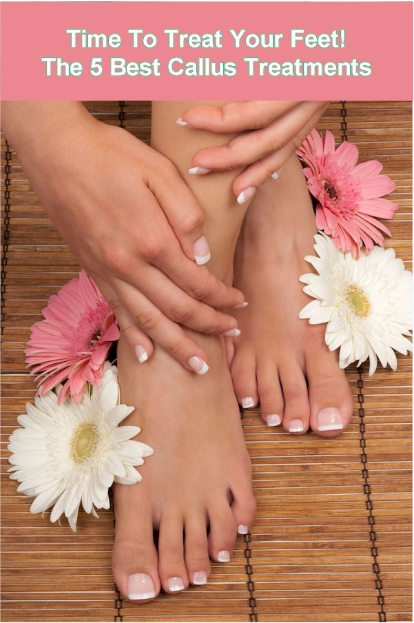 Time to Treat Your Feet to Something Special! The 5 Best Callus Treatments. http://foot-love.com/5-best-callus-removal-treatments-4/