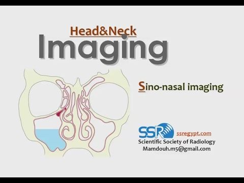 Paranasal Sinus imaging quiz cases - Prof Dr. Mamdouh Mahfouz (In Arabic) - YouTube