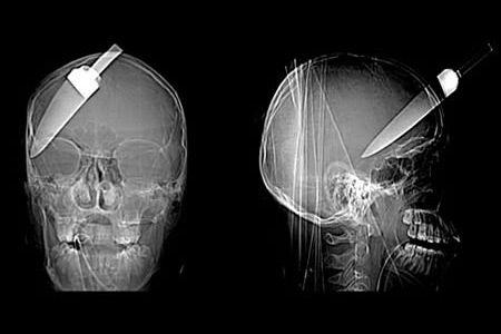 15 Most Bizarre X-Rays (funny x-rays, bizarre x-rays, strange x-rays) - ODDEE