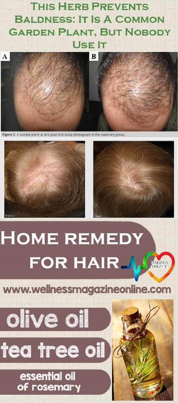 Best  Hair Regrowth Shampoo Ideas On Pinterest - Onion juice for hair regrowth review