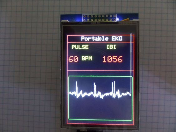 Picture of Arduino Portable EKG Monitor