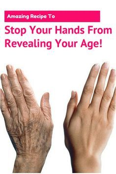 Amazing Recipe To Stop Your Hands From Revealing Your Age!