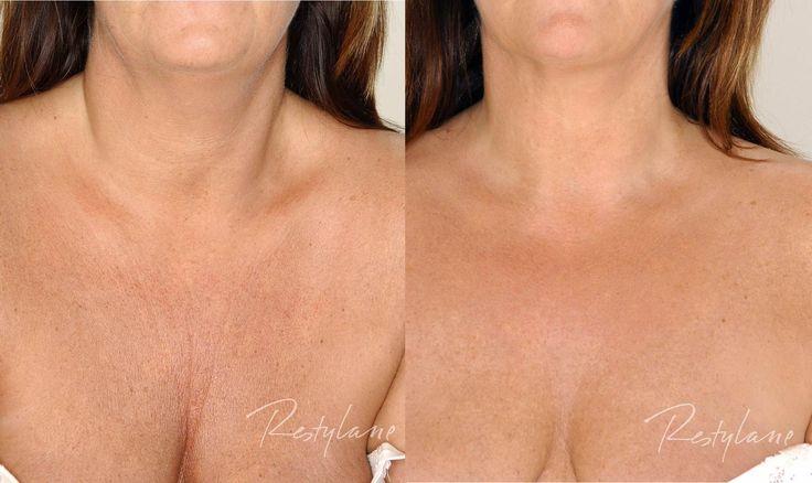 Ta vare på de tynne hudområdene som bryst, hender, hals