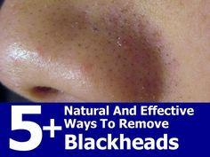 5+ Natural And Effective Ways To Remove Blackheads - Noticed that alot of the recipes also help with scrubbing off dead skin, and tightening pores.