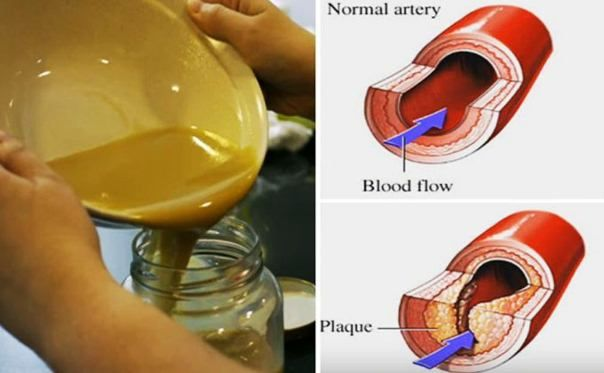 Drink this miraculous potion every day and you will unblock your arteries and deal with increased blood pressure and bad cholesterol. Many people are affected by high cholesterol levels. This condition is usually a result of the stressed and fast way of life we live today, and not paying attention about our health. When the…