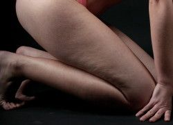 4home remedies to get rid of cellulite