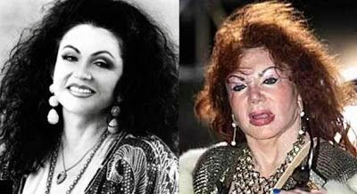 Top 5 Plastic Surgery Fails #2 | Jackie Stallone | Unexpected Top 10 moviesteaser.com