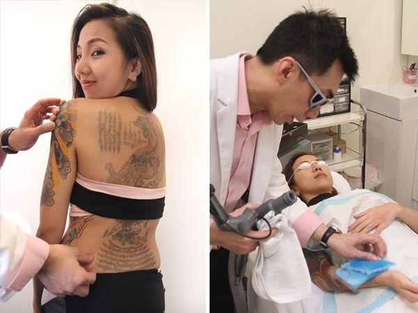 100 28 best laser tattoo removal tattoo removal ink for Tattoo removal lexington