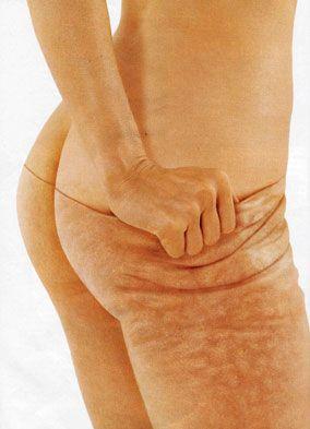 Como Eliminar Celulitis En Piernas