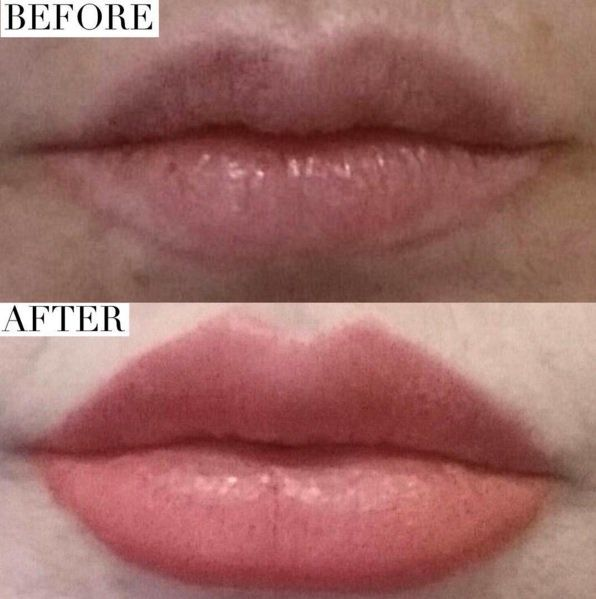 Juvederm for lip fillers. Before & After of Lips, done by Lilia. Thought about getting lip fillers? Trust Lilia to give you the look you're going for. She is truly an artist! As always, we have free consultations. 818-553-3777