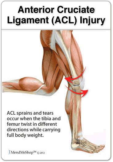 #MendMeShop, ACL Injury - sprains and tears occur when the tibia and femur twist in different directions while carrying full body weight.