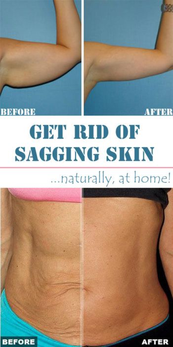 6 Wonderful Home Remedies for Sagging Skin  One of the worst things about crepey skin is that it sags. Learn the secrets to improve your skin.