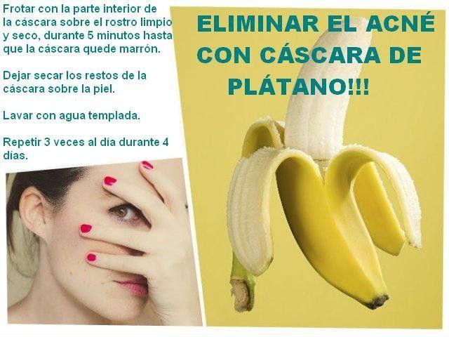 eliminar-acne-bananas. Increible.