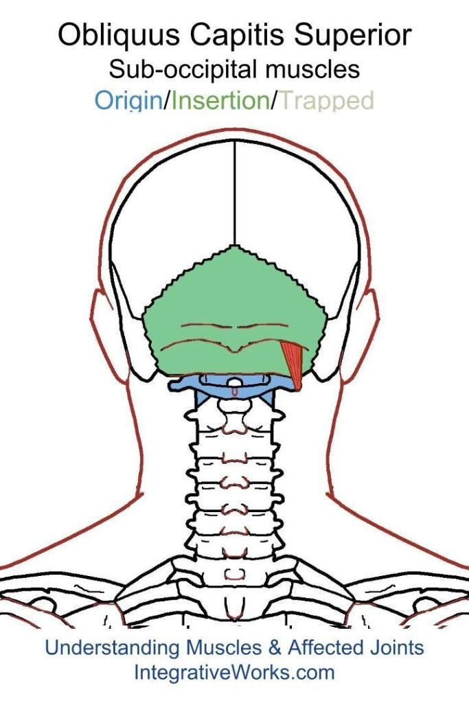 Understanding Trigger Points- Headache All Over Or In A ...