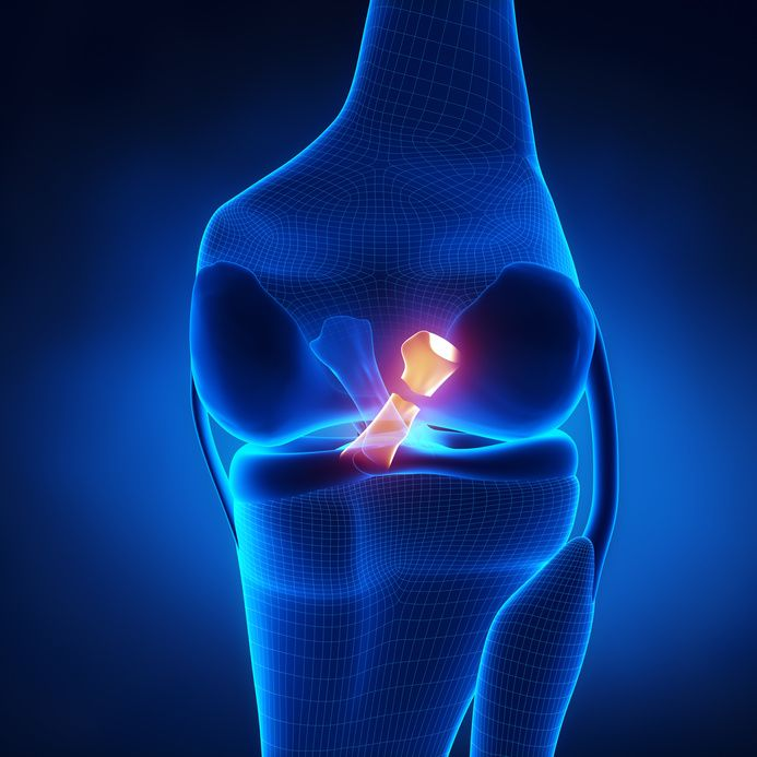 ACL and MCL Tears: A combined ligament injury that requires a well thought out approach.